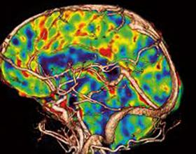 Перфузия головного мозга