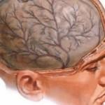 Постравматическая энцефалопатия: причины и лечение