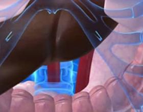 Билиарная гипертензия
