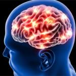 Обширный инсульт мозга: последствия и лечение
