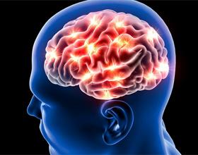 Обширный инсульт мозга