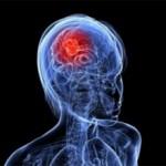 Рак головного мозга на ранней стадии: признаки, симптомы, что делать