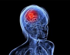 Рак головного мозга на ранней стадии