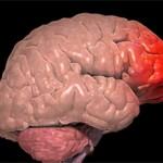 Ушиб головного мозга: симптомы, прогноз и лечение