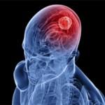 Ишемический инсульт левой стороны: последствия и лечение