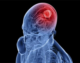 Ишемический инсульт левой стороны