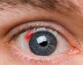 Кровоизлияние в глаз: причины и лечение