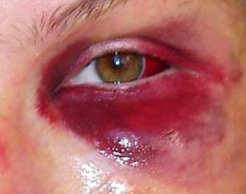 Кровоизлияние в полость глазницы