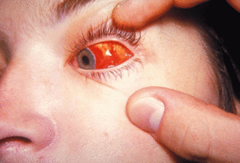 Кровоизлияние в сетчатку