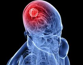 Неоперапельная опухоль головного мозга
