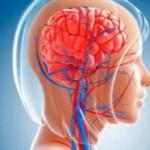Острое нарушение мозгового кровообращения: причины и помощь