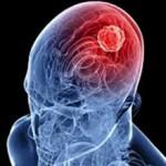 Отек головного мозга: причины, последствия, лечение