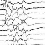 Пароксизмальная активность головного мозга  —  что это