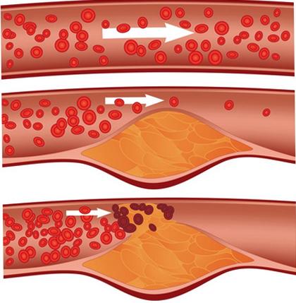 Бляшка в артерии