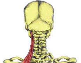 Ригидность мышц затылка: симптомы и лечение