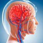 Нарушение мозгового кровообращения: симптомы, признаки и лечение