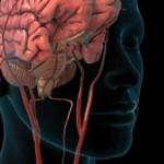 Транзиторная ишемическая атака: что это, последствия, лечение