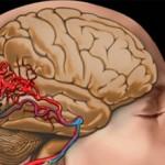 Закупорка сосудов головного мозга: симптомы и лечение