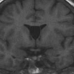 Киста прозрачной перегородки головного мозга: симптомы и лечение
