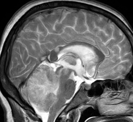 МРТ кровоизлияния