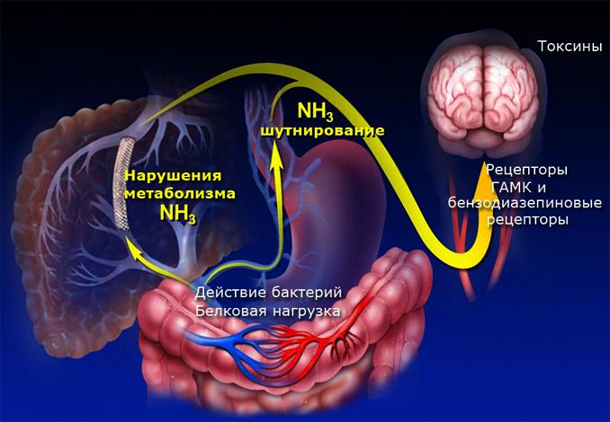 Патогенез печеночной энцфалопатии
