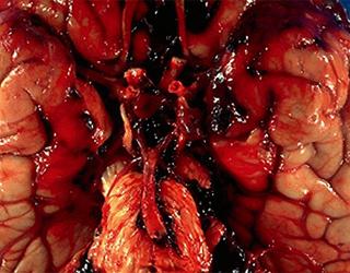 Субарахноидальное кровоизлияние